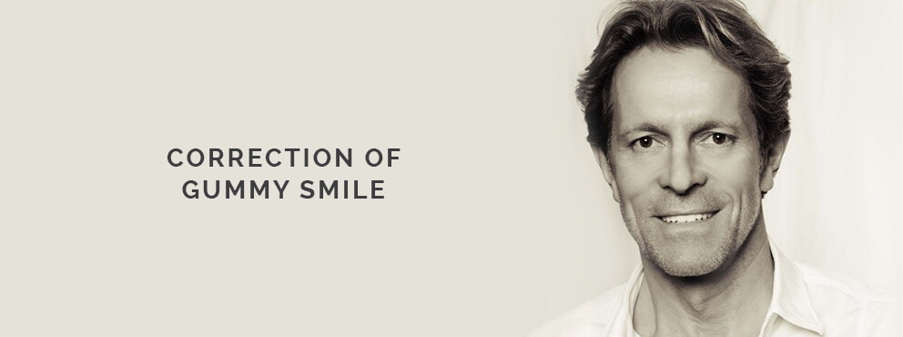 Gummy Smile Correction, Dr. Desmyttère, Dentist Munich, smileforever