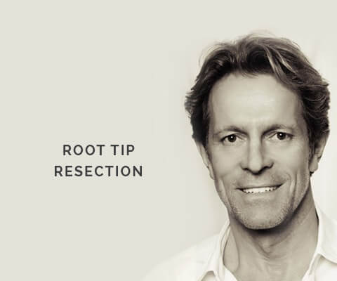 Root Tip Resection, Dr. Desmyttère, Dentist Munich, smileforever